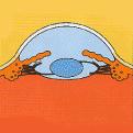眼内レンズ挿入時の前眼部の断面図